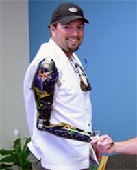 David Tagliarini, unilateral above-elbow amputee